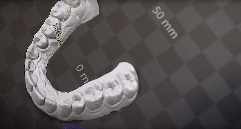 The Difference Between Digital vs Analog Orthodontics