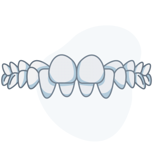 Crossbite (Back Teeth)