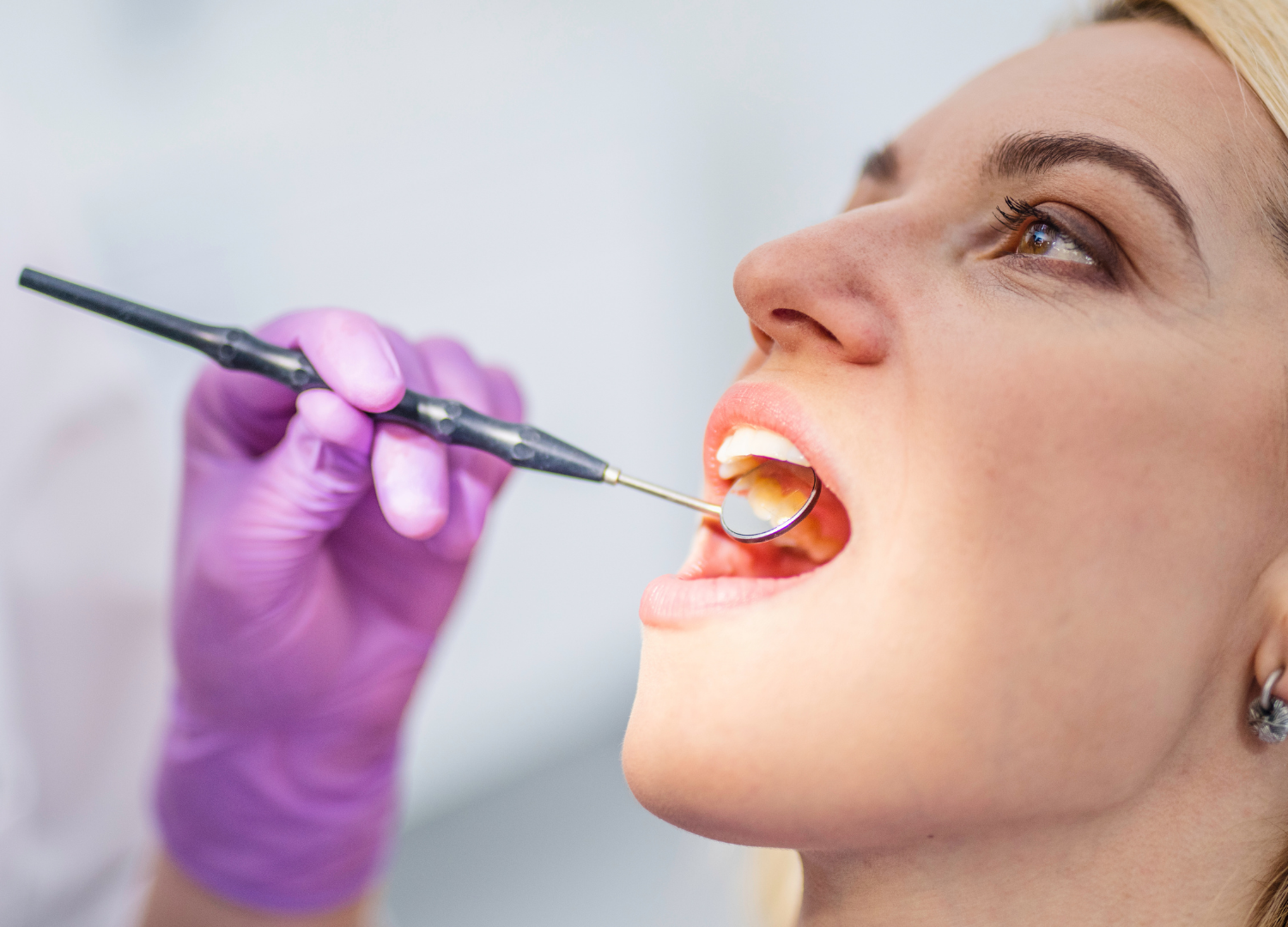 Extractions: When To Remove Teeth Or Not